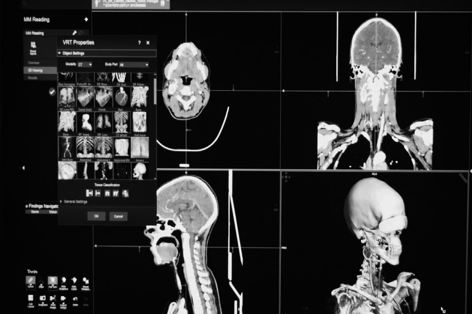 3D CT-Scanner Software